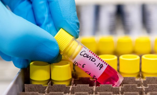 blue gloved hand holding COVID 19 specimen sample