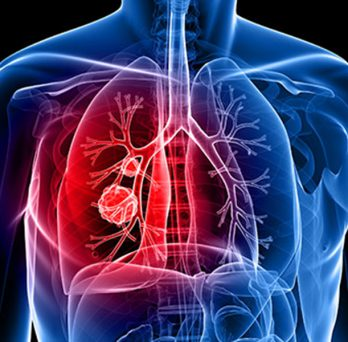 transparent graphic depiction of a chest with tumor on lungs